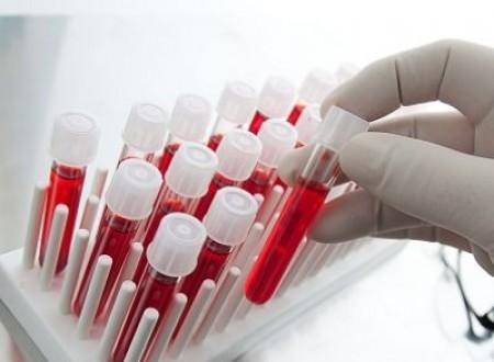 Analize medicale pentru prostata